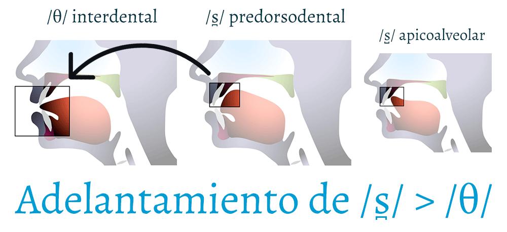 La /s̪/ predorsodental se adelanta hacia /θ/ interdental